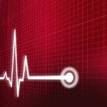 coches predicen ataques cardiacos